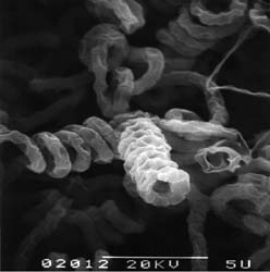 Streptomyces avermitilis MA-4680 電子顕微鏡写真